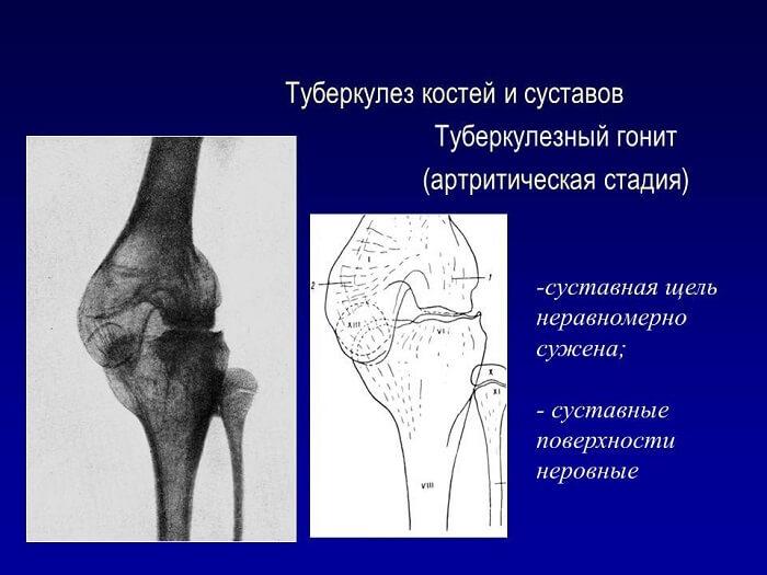 Характеристики туберкулеза костей