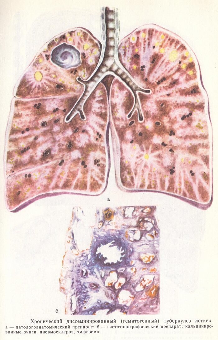Хронический диссеминированный туберкулез