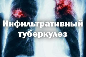 Инфильтративный туберкулез легких