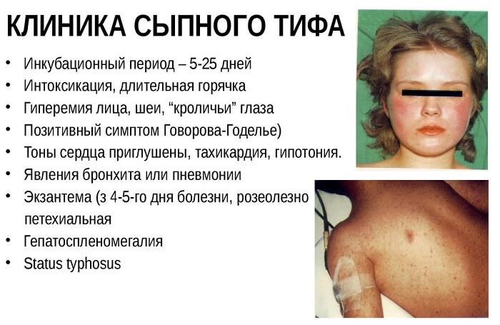 Клиника сыпного тифа