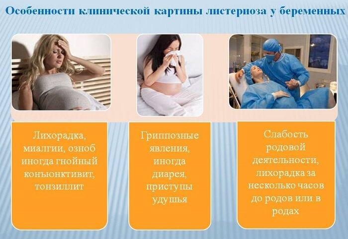 Листериоз у беременных
