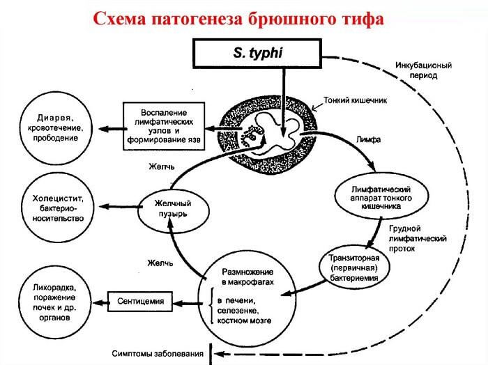 Схема развития тифа