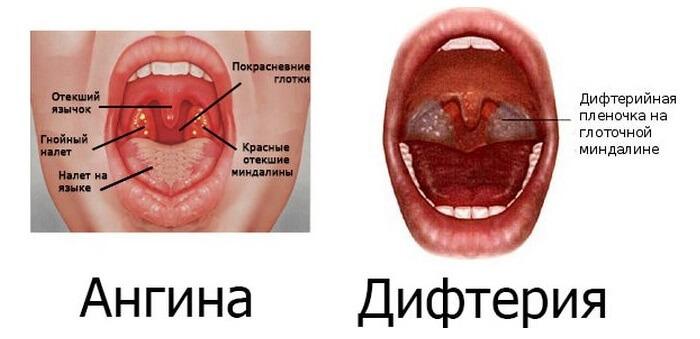 Сравнение ангины и дифтерии