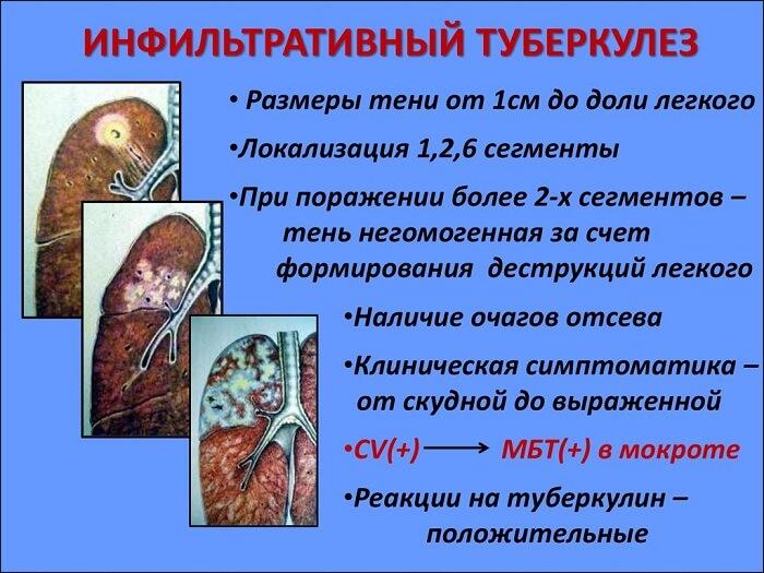 Туберкулез инфильтративный