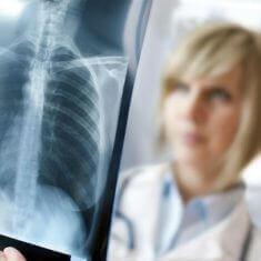 Диссеминированный вид туберкулеза