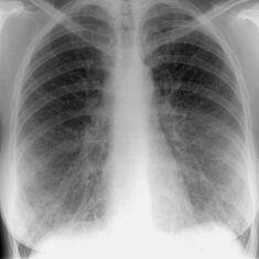 Инфильтративный вид туберкулеза