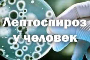 Лептоспироз у человека - симптомы и лечение