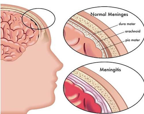Основные проявления менингита