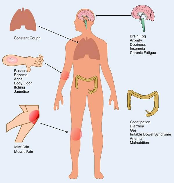 Основные симптомы инфекции