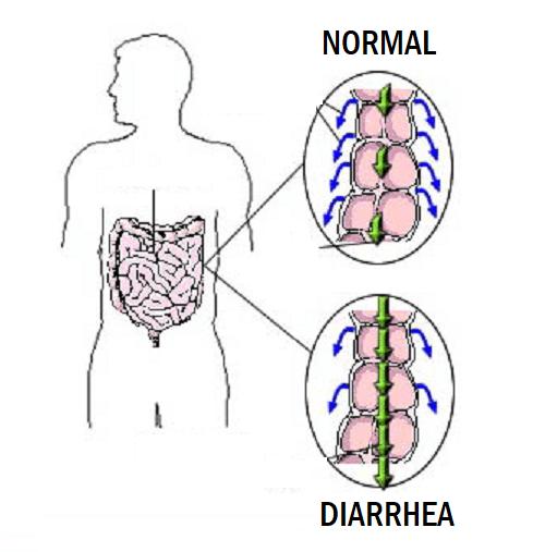Проявления диареи у человека