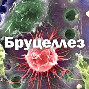 Бруцеллез - симптомы у человека