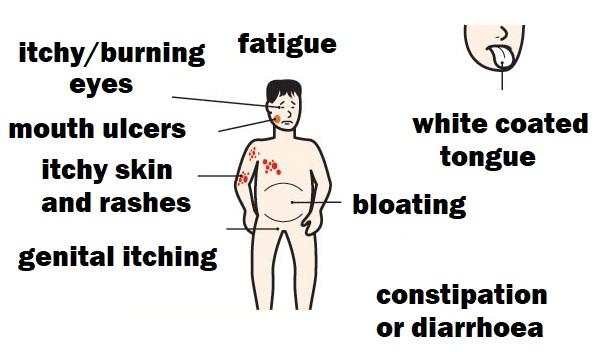 Характеристика и проявления заболевания