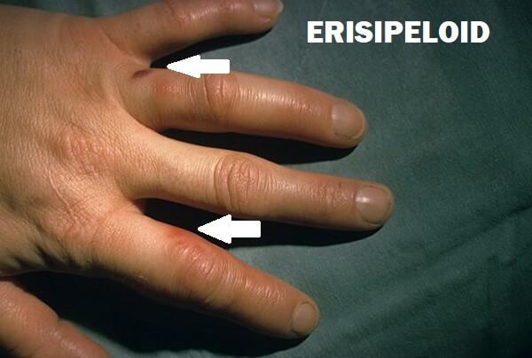 Характерные особенности эризипелоида