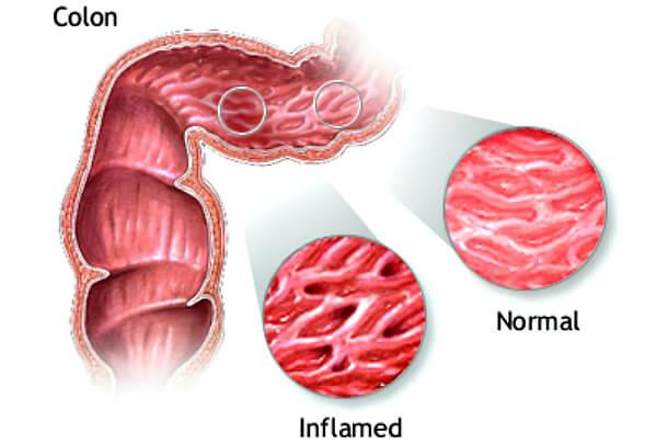 Инфицированные ткани