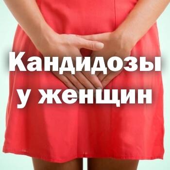 Кандидозы у женщин - симптомы и лечение