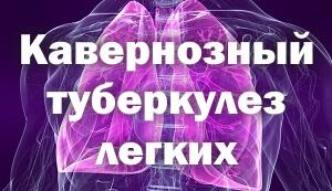Кавернозный туберкулез легких