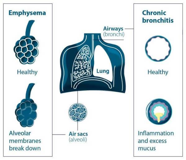 Кровяной кашель у человека