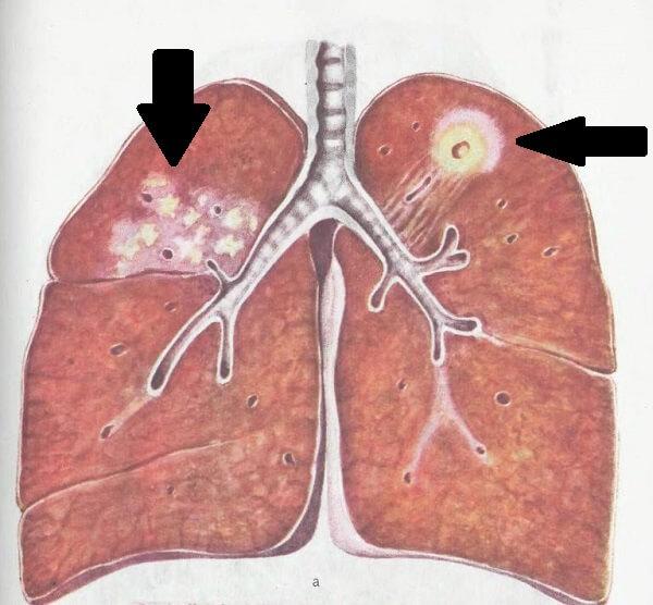 Очаги туберкулеза у человека