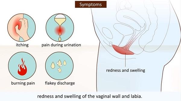 Основные симптомы кандидоза
