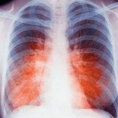 Открытый туберкулез