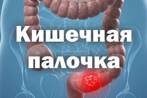 Кишечная палочка, симптомы