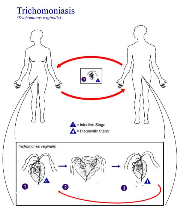 Патологический процесс у женщин