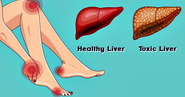 Печень при токсическом гепатите