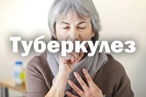 Туберкулез - симптомы, первые признаки у взрослых