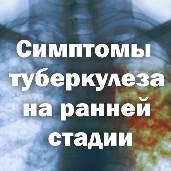Симптомы туберкулеза на ранней стадии