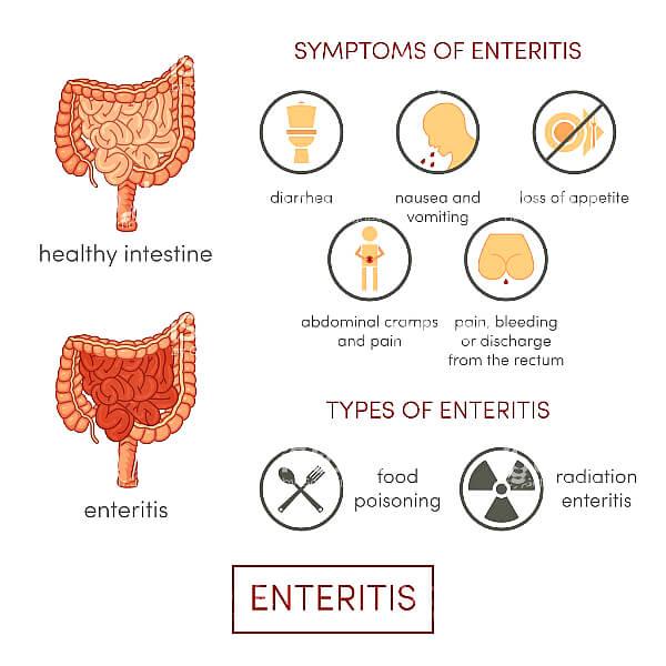 Cимптомы воспаления кишечника
