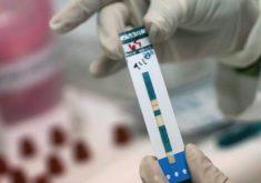 Тест на ВИЧ
