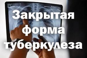 Закрытая форма туберкулеза
