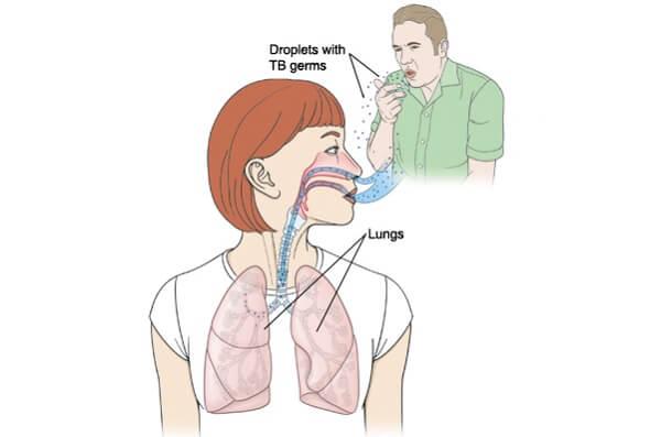 Заражение туберкулезом легких