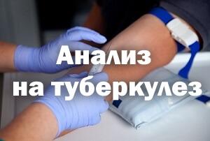 Анализ на туберкулез