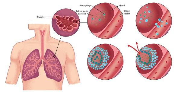 Характеристика проявления туберкулеза