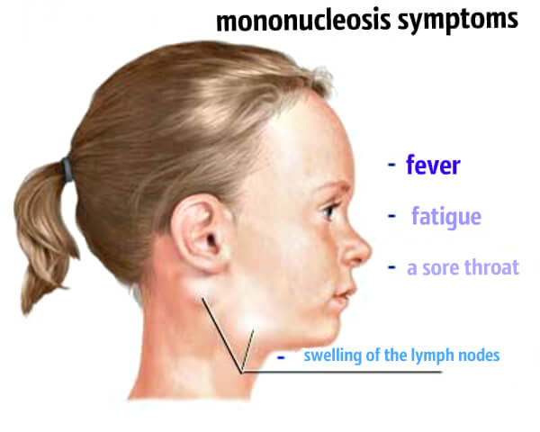 Основные симптомы мононуклеоза