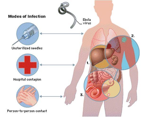 Пути заражения болезнью