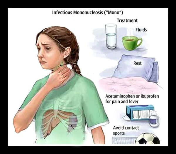 Способы лечения мононуклеоза