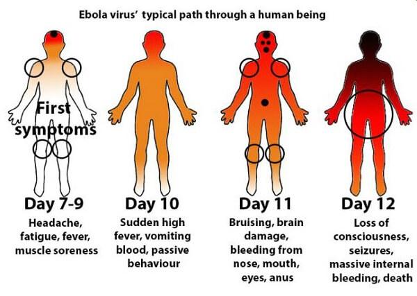 Вирус эбола у человека