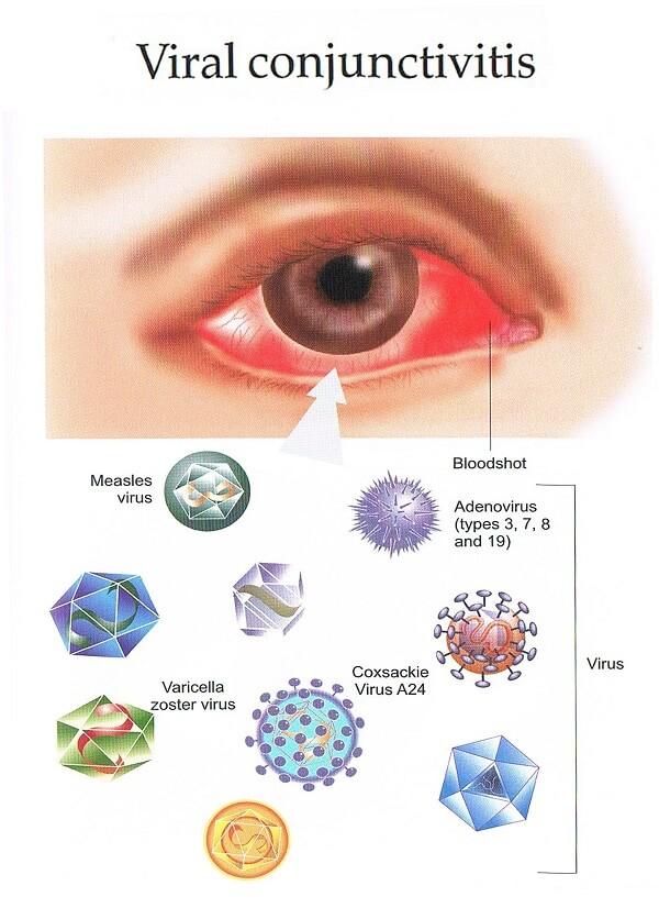 Вирусы конъюнктивита
