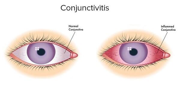 Здоровый и пораженный глаз