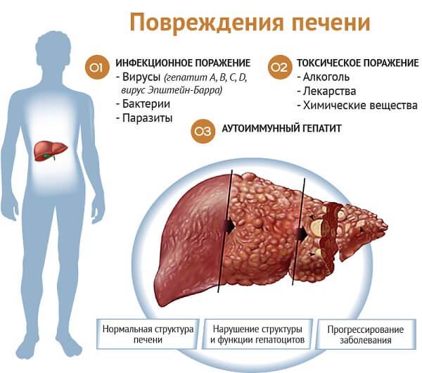Повреждение печени человека