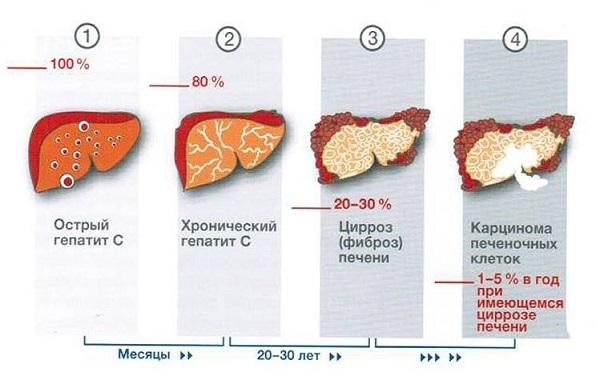 Стадии прогрессирования гепатита