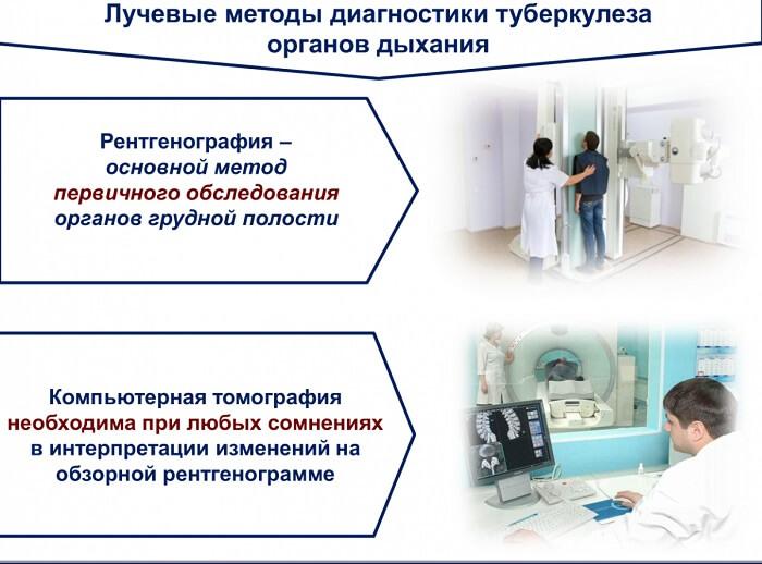 Диагностические мероприятия по выявлению туберкулеза
