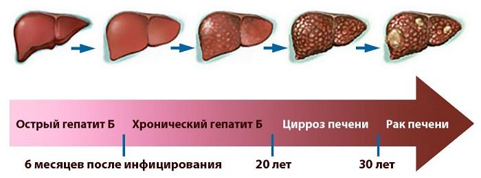Развитие гепатита
