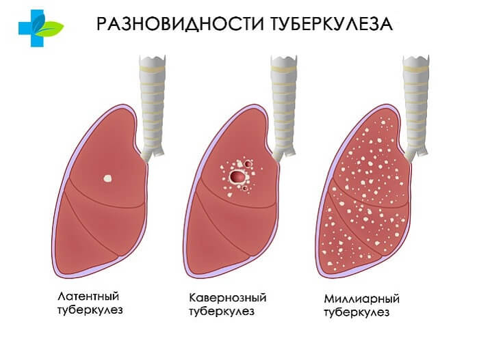 Основные виды туберкулеза